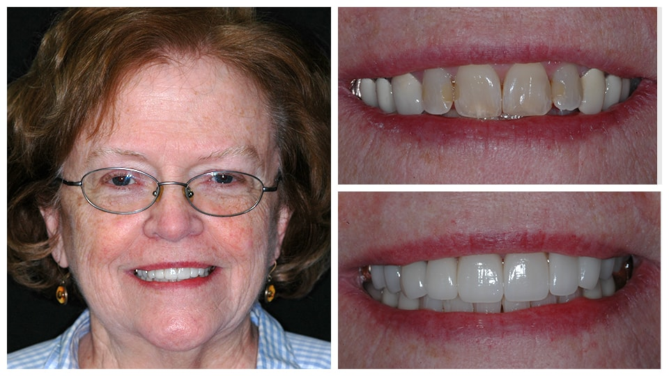 Mary who is an actual patient who had porcelain veneers