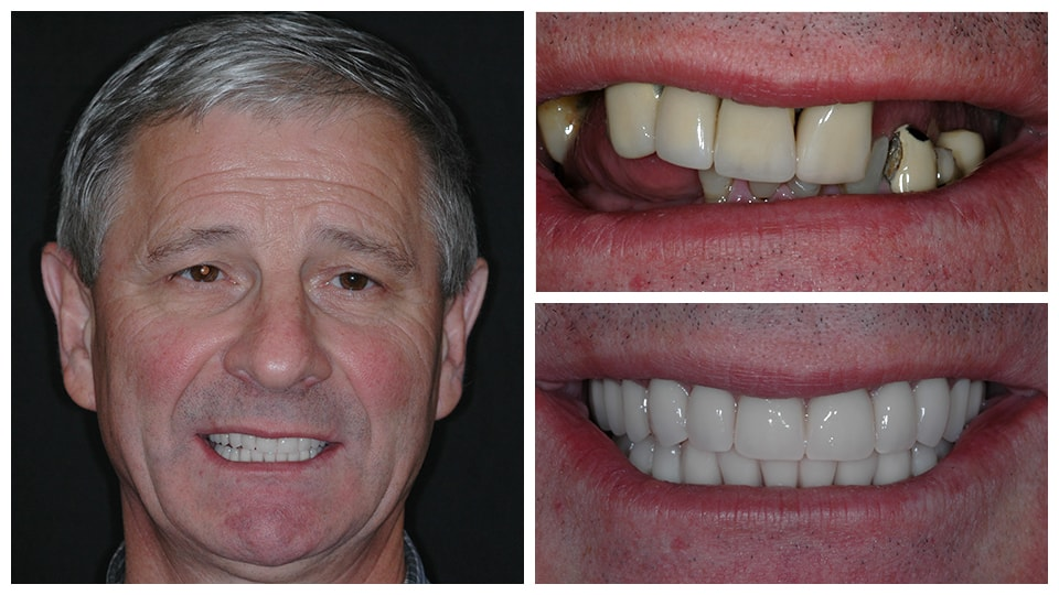 Actual cosmetic dentistry patient at Benjamin Turnwald Dentistry
