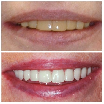 Linda who is a patient at Benjamin Turnwald Dentistry who underwent cosmetic dentistry in Schaumburg, IL. View her before and after Smile Gallery photo.