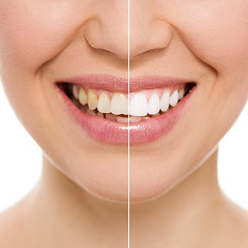 Before and after of receiving teeth whitening