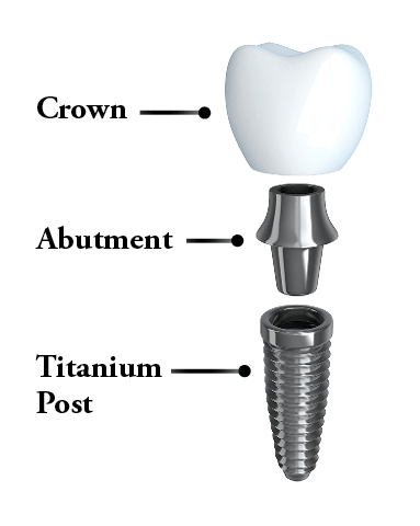 Anatomy of a dental implant including crown, abutment, and post.