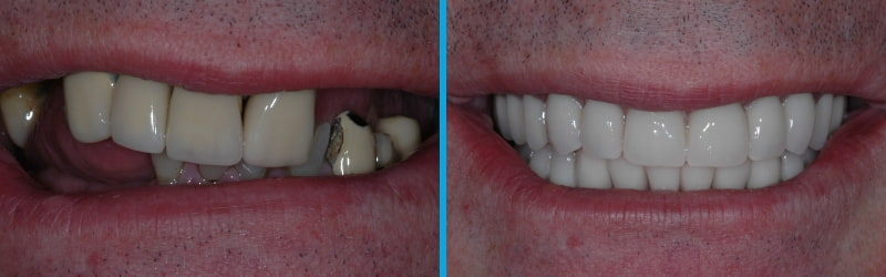 Smile comparison of a patient before and after dental implants